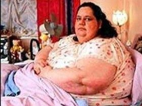 чревоугодника,ожирение
