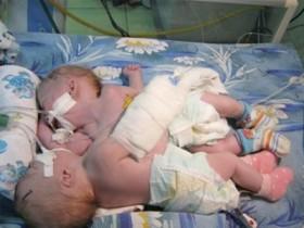сиамские близняшки