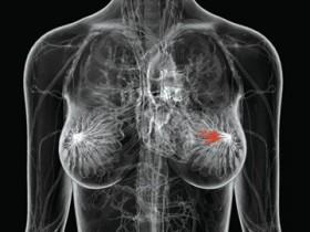 рак,груди