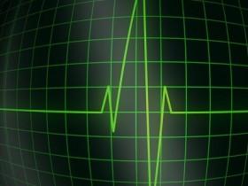 кардиограма