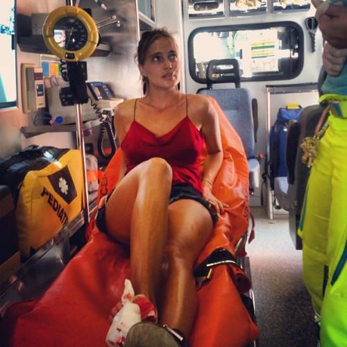 Солистка Глюкоза травмировалась в Италии (фото)