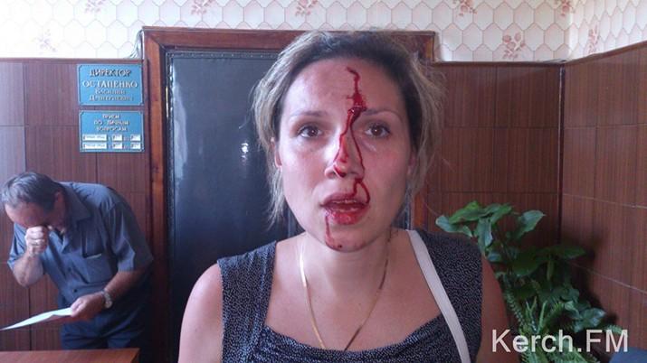 В Керчи парламентарий побил домашнюю пару в собственном офисе