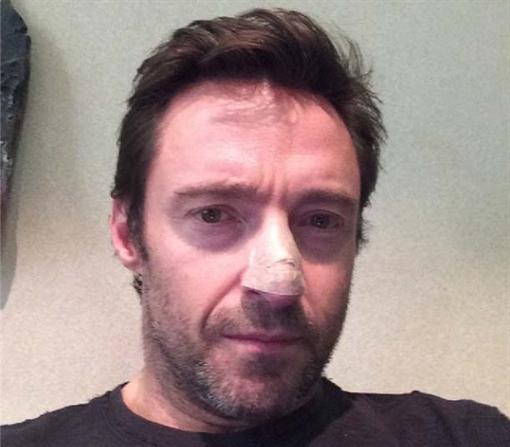 У Хью Джекмана обнаружили рак кожи (ФОТО)