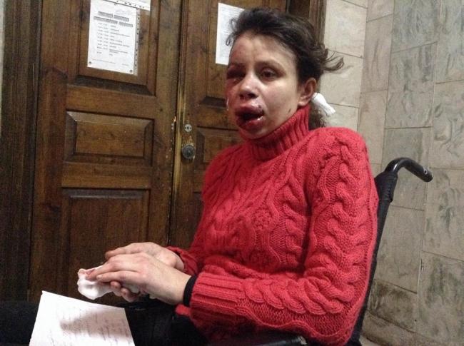 Не известные невообразимо побили журналистку Татьяну Чорновол