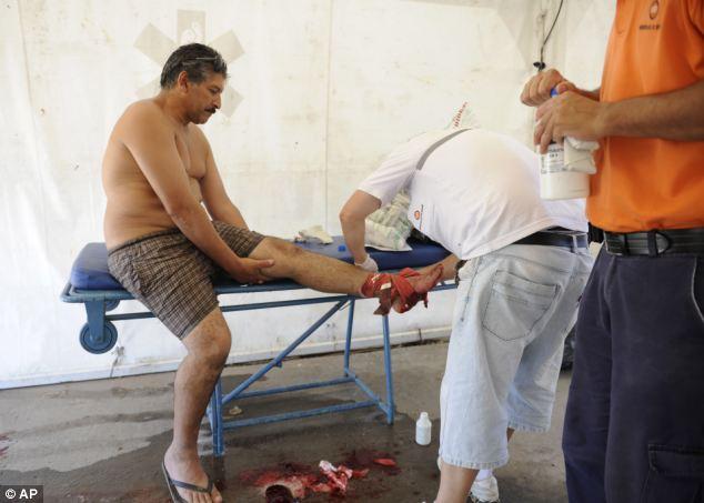 70 человек пострадали от укуса пираньи в Аргентине (ВИДЕО)