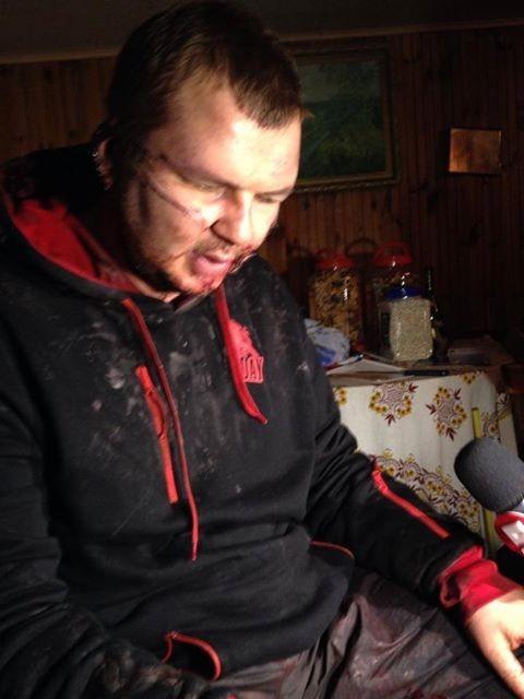 Д. Булатова испытывали, отхватили ухо и распинали. ФОТО