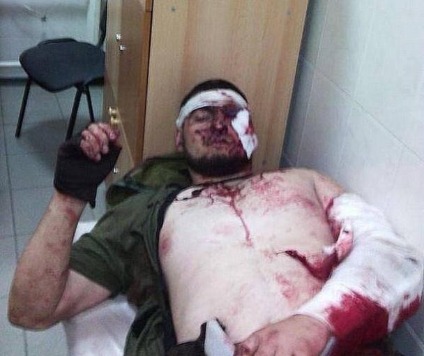 В Сети появились фото раненого чеченца из Донецка (ФОТО)