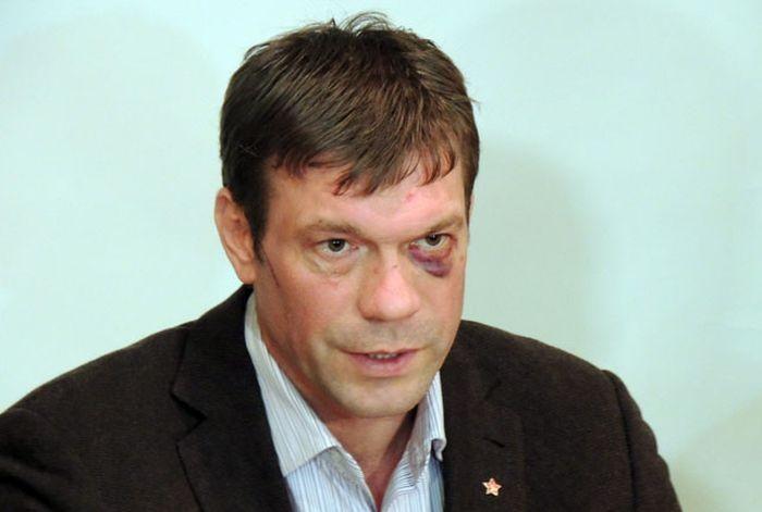 """ФОТО: Смотритель """"Стрелка"""" побил Олега Царева за бегство"""