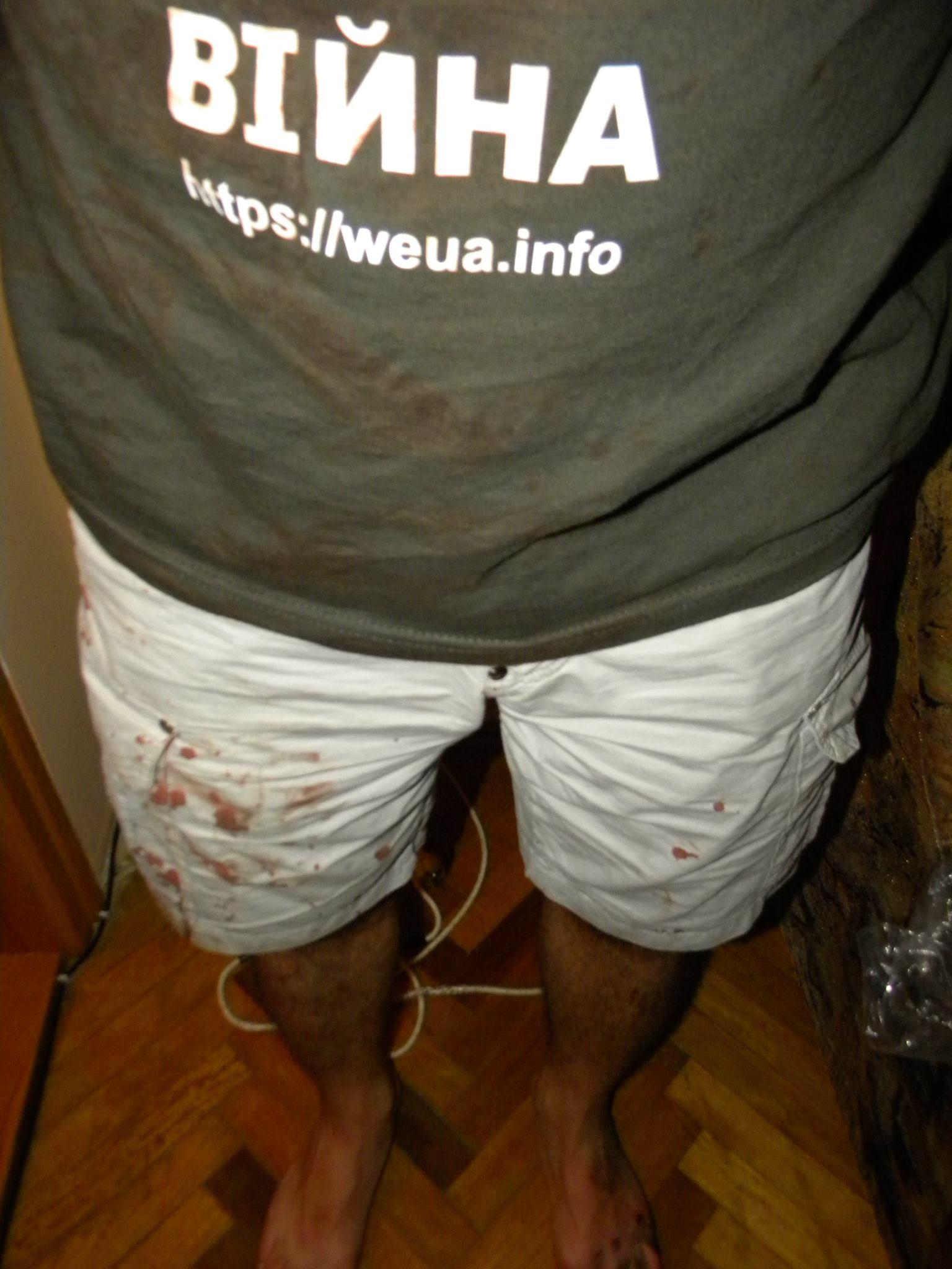 ФОТО: Во Львове избивают жителей с криками «Слава Путину!»