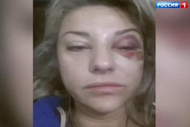 Ошарашивающие детали избиения супруги Маратом Башаровым. ФОТО