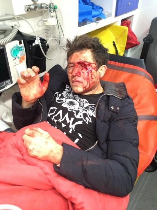 ФОТО: Андрей Джеджула был жестоко избит возле своего дома