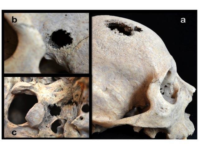Древние люди тоже болели раком