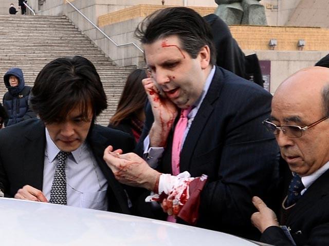 В Южной Корее послу США порезали лицо бритвой