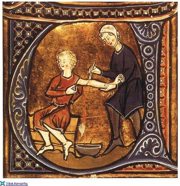 Самые древние и странные виды контрацепции (ФОТО)