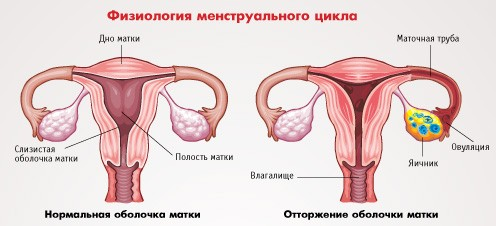 Очень болезненная менструация. Советы специалистов (ВИДЕО)