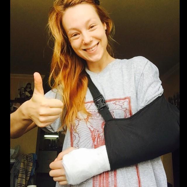 Светлана Тарабарова сломала руку
