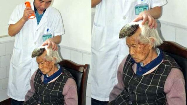 У китаянки на голове повысился большой мыс (ФОТО)