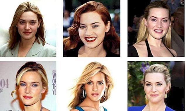 Звезды, которые кардинально поменялись за всю карьеру (ФОТО)