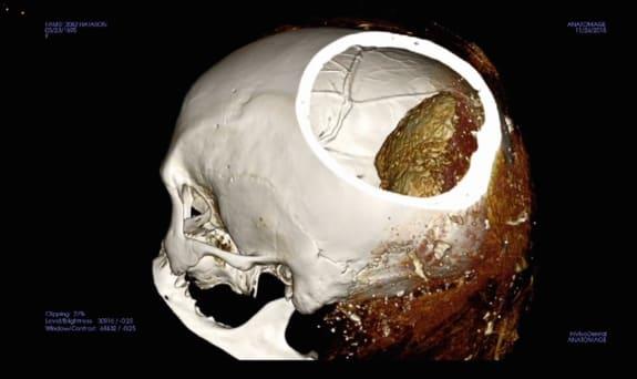 Странная мумия из Египта установила науку в тупик (фото)
