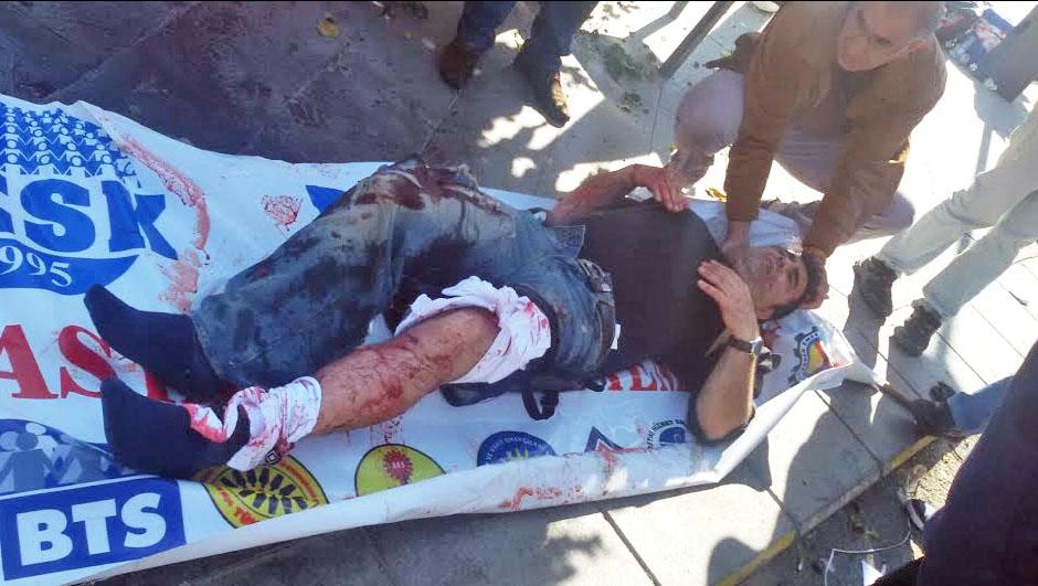 Акт в Анкаре. Были убиты более 20 человек (ФОТО, ВИДЕО)