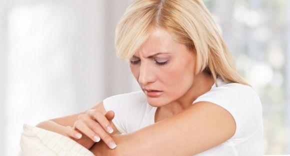 псориаз симптомы